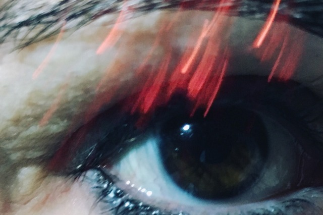 eye-with-red